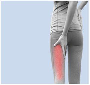 Ejercicios de yoga para el nervio ciático